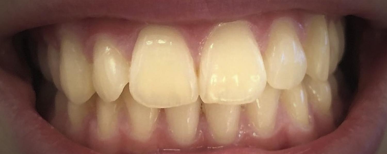 имени 1 4 - Приклади відбілювання зубів