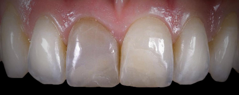 имени 1 5 - Приклади робіт з протезування