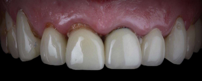 имени 1 6 - Приклади робіт з протезування