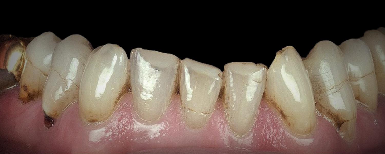имени 1 7 - Приклади робіт з протезування