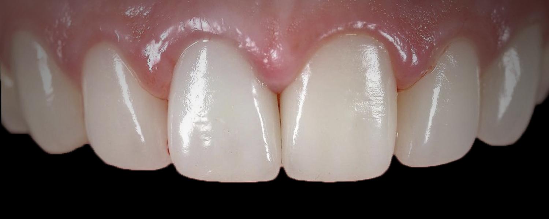 имени 1 - Приклади робіт з протезування