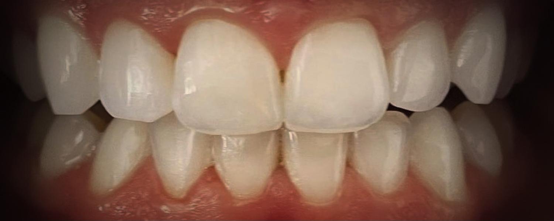 имени 2 1 - Приклади відбілювання зубів