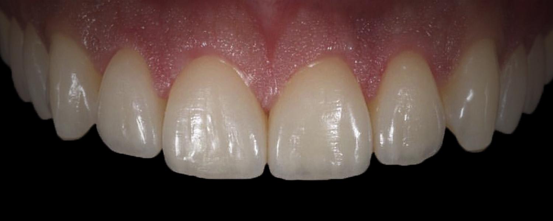 имени 2 12 - Приклади реставрації зубів
