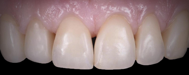 имени 2 13 - Приклади реставрації зубів