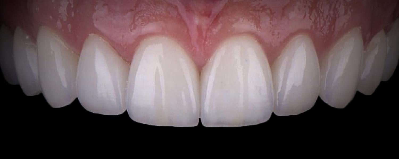 имени 2 14 - Приклади реставрації зубів