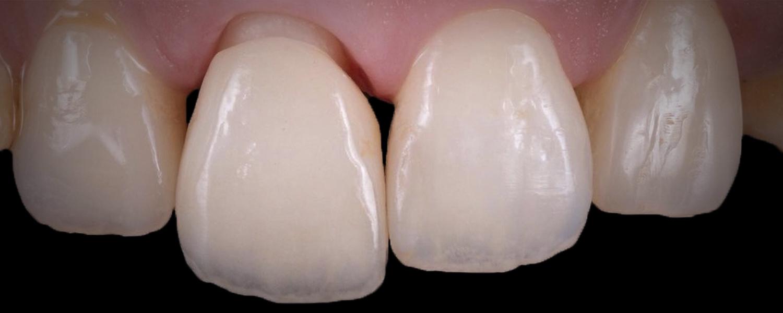 имени 2 17 - Приклади робіт з протезування