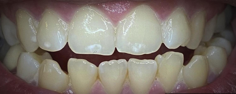 имени 2 2 - Приклади відбілювання зубів