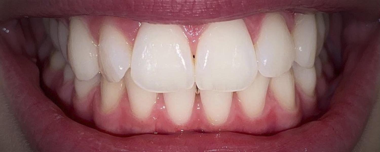 имени 2 3 - Приклади відбілювання зубів