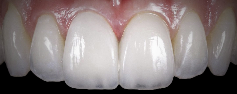 имени 2 4 - Приклади робіт з протезування