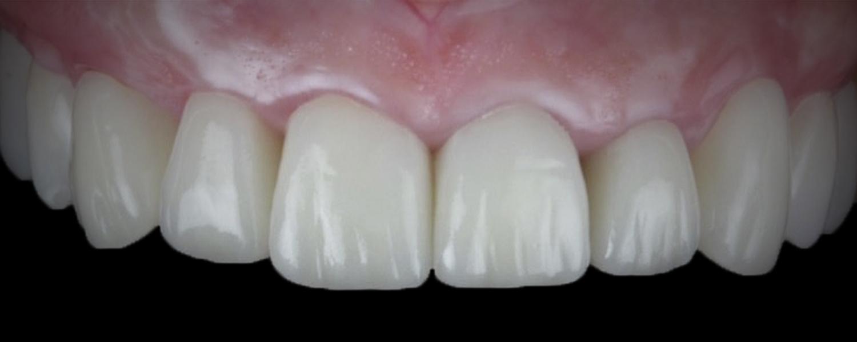 имени 2 5 - Приклади робіт з протезування