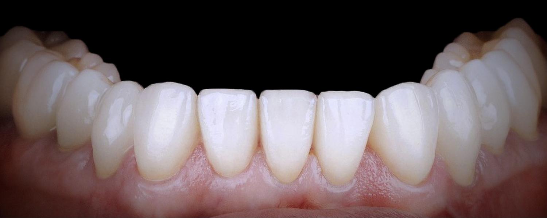 имени 2 6 - Приклади робіт з протезування