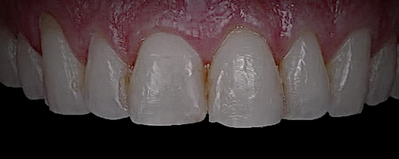 1 1 - Приклади реставрації зубів