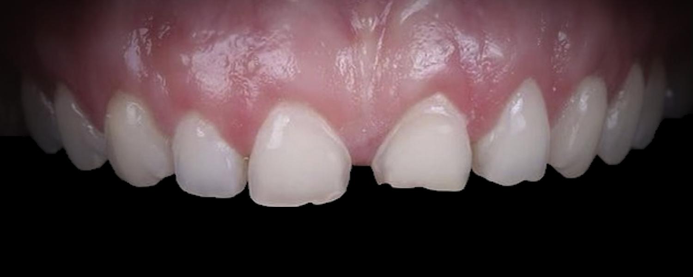 1 2 - Приклади реставрації зубів