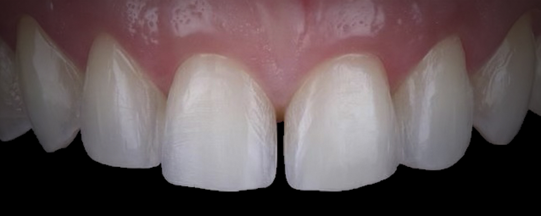 1 3 - Приклади реставрації зубів