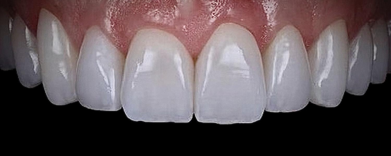 2 1 - Приклади реставрації зубів