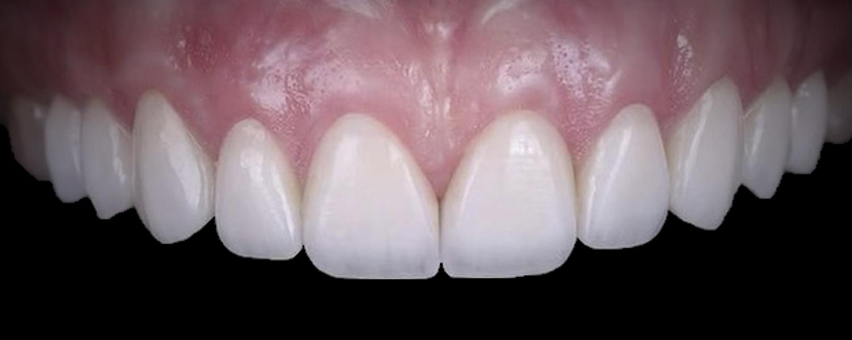 2 2 - Приклади реставрації зубів