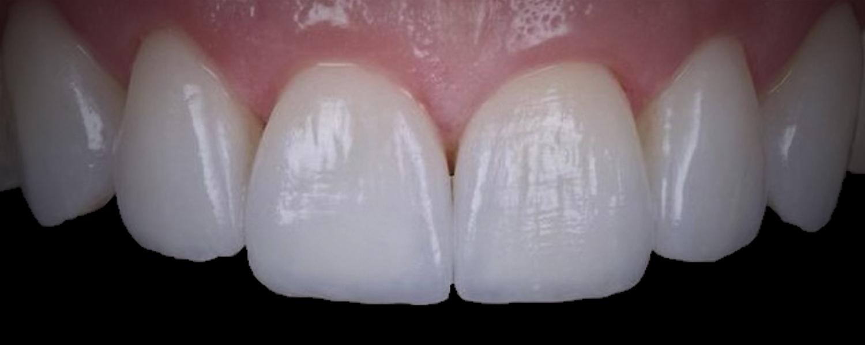 2 3 - Приклади реставрації зубів