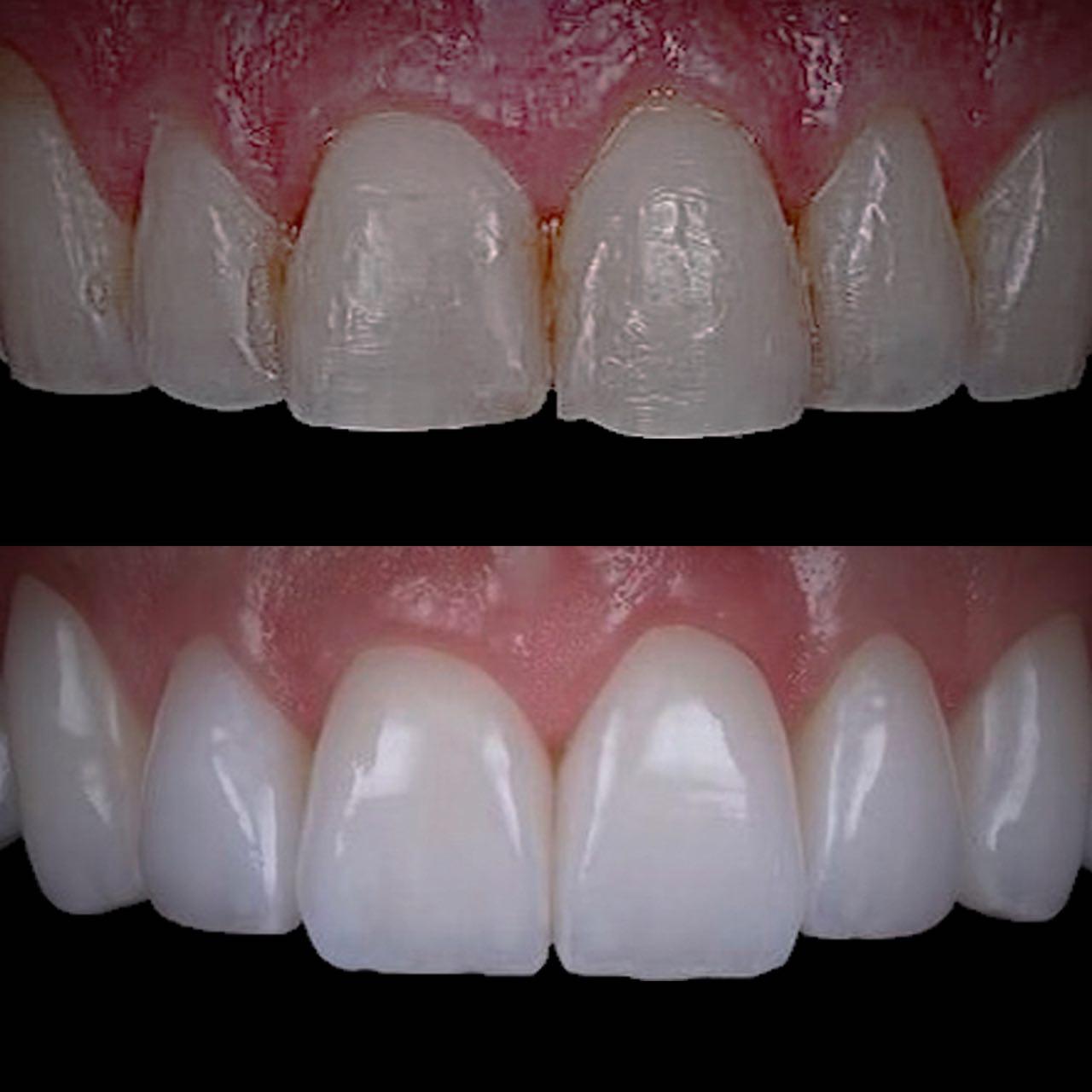 1 - Протезування зубів