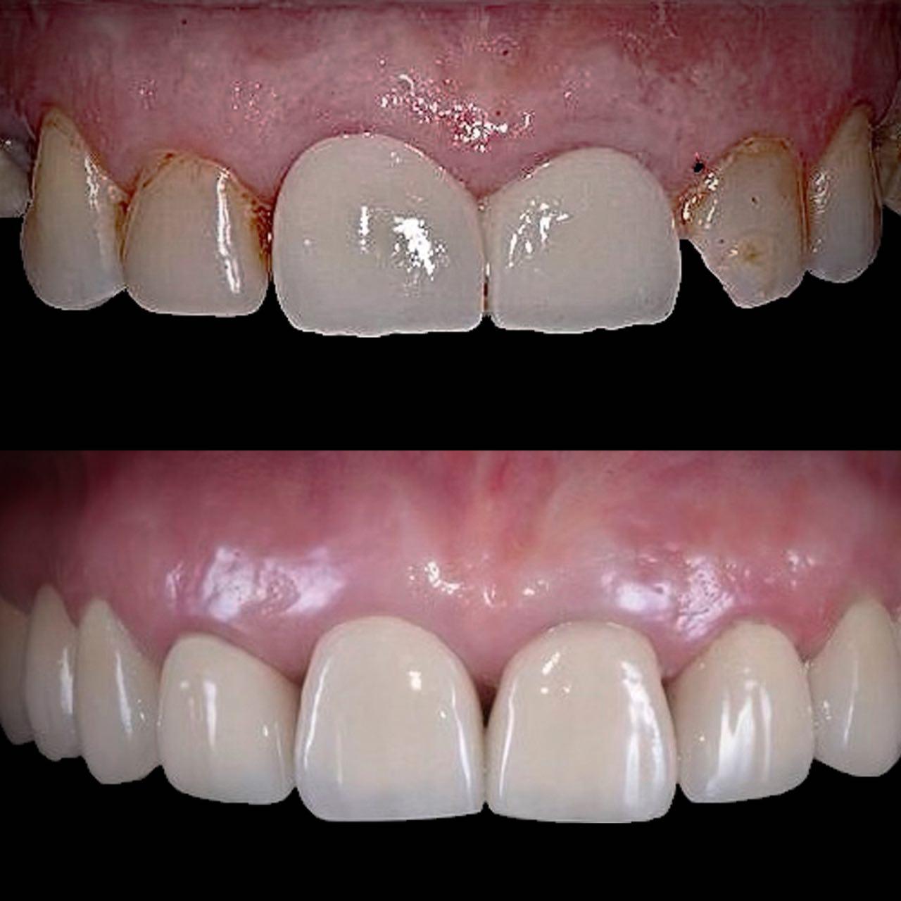 2 - Протезування зубів