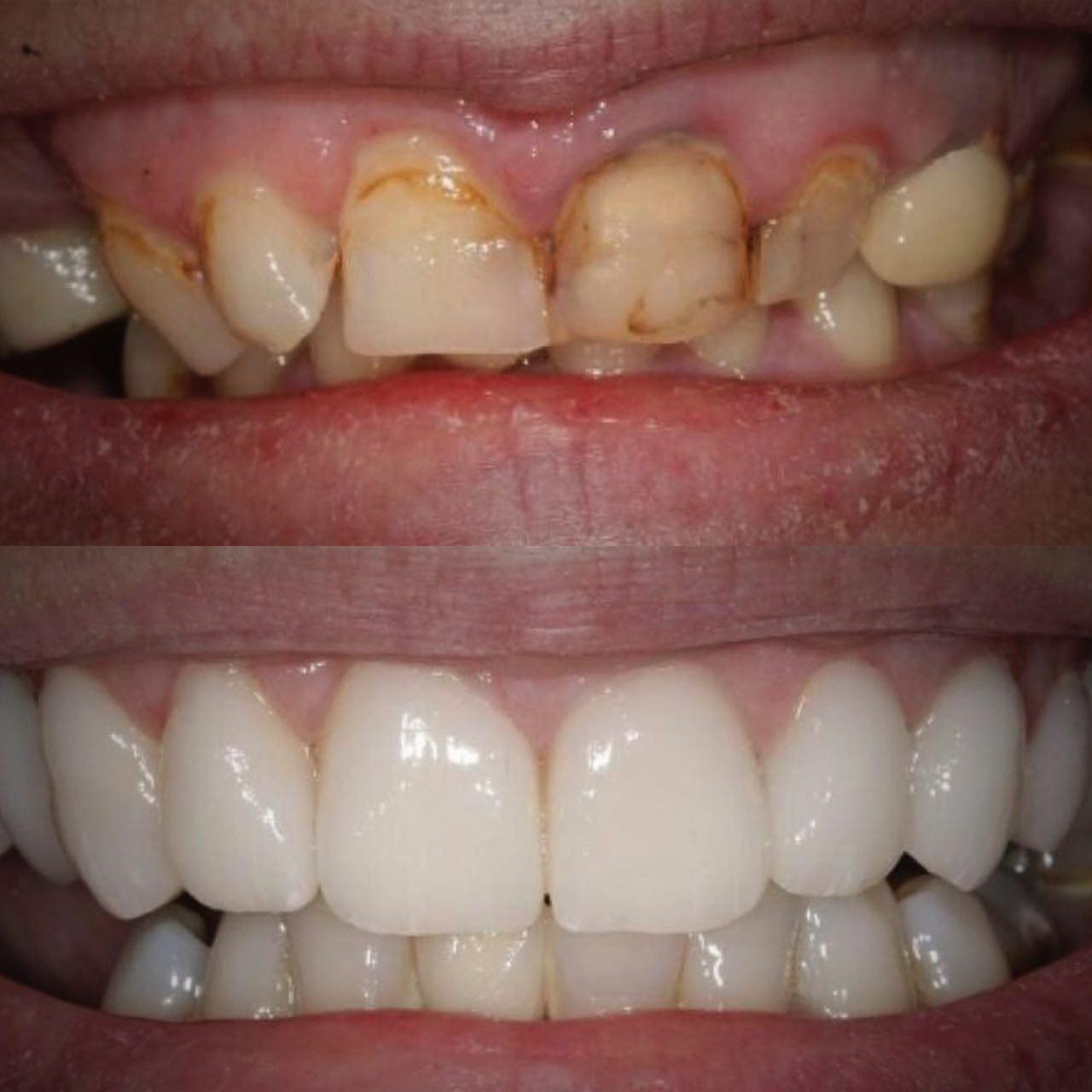 3 - Протезування зубів