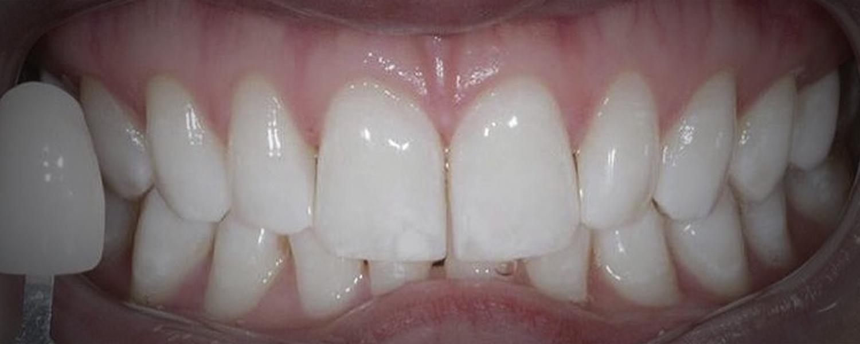 1 - Приклади відбілювання зубів