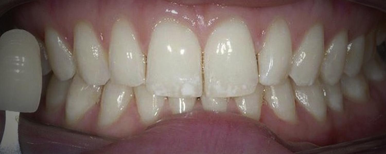 2 - Приклади відбілювання зубів