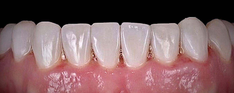 1 2 rotated - Приклади реставрації зубів