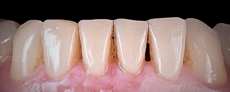 1 rotated - Приклади реставрації зубів