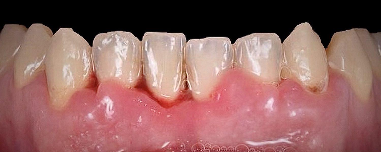 22 rotated - Примеры реставрации зубов