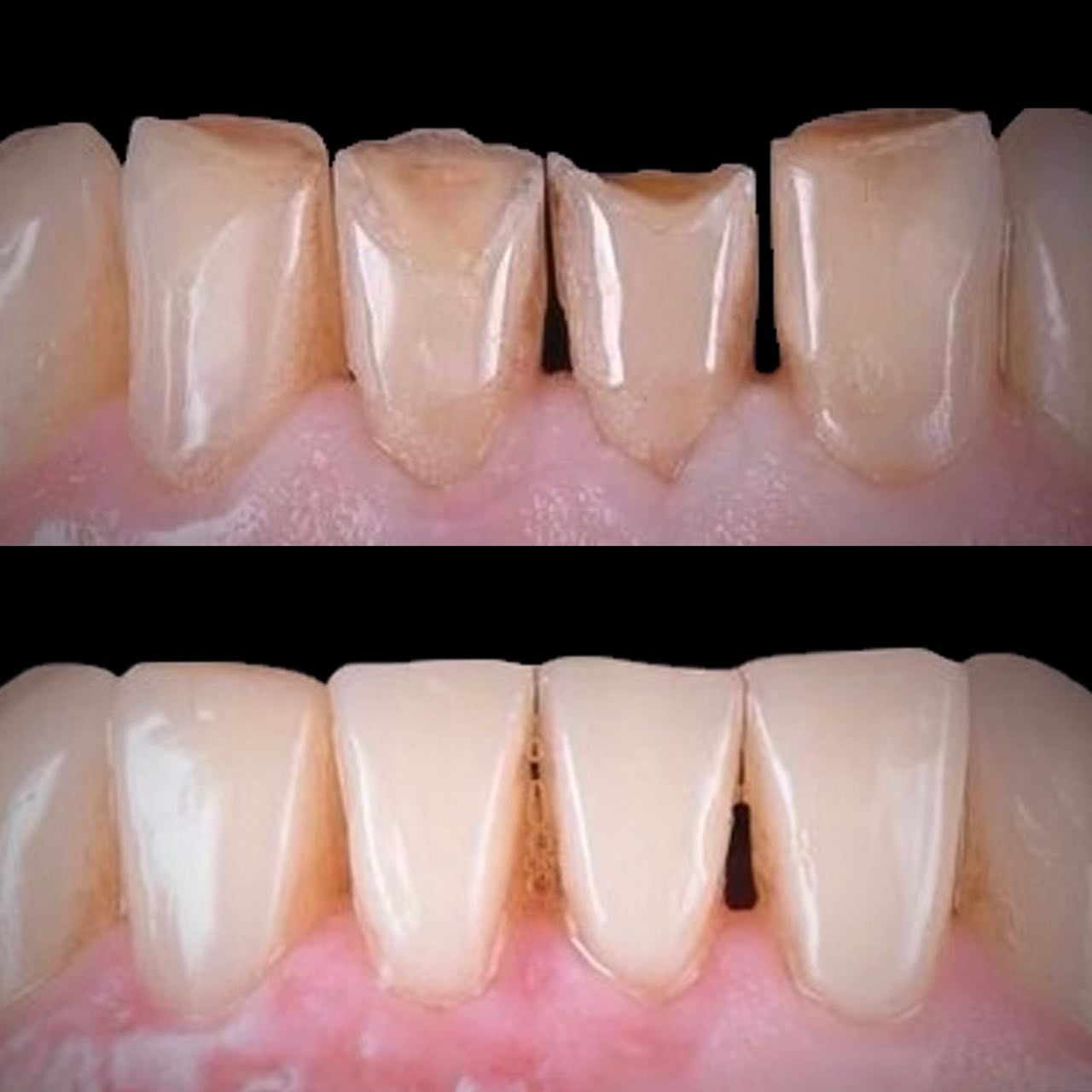 1 - Художня реставрація зубів
