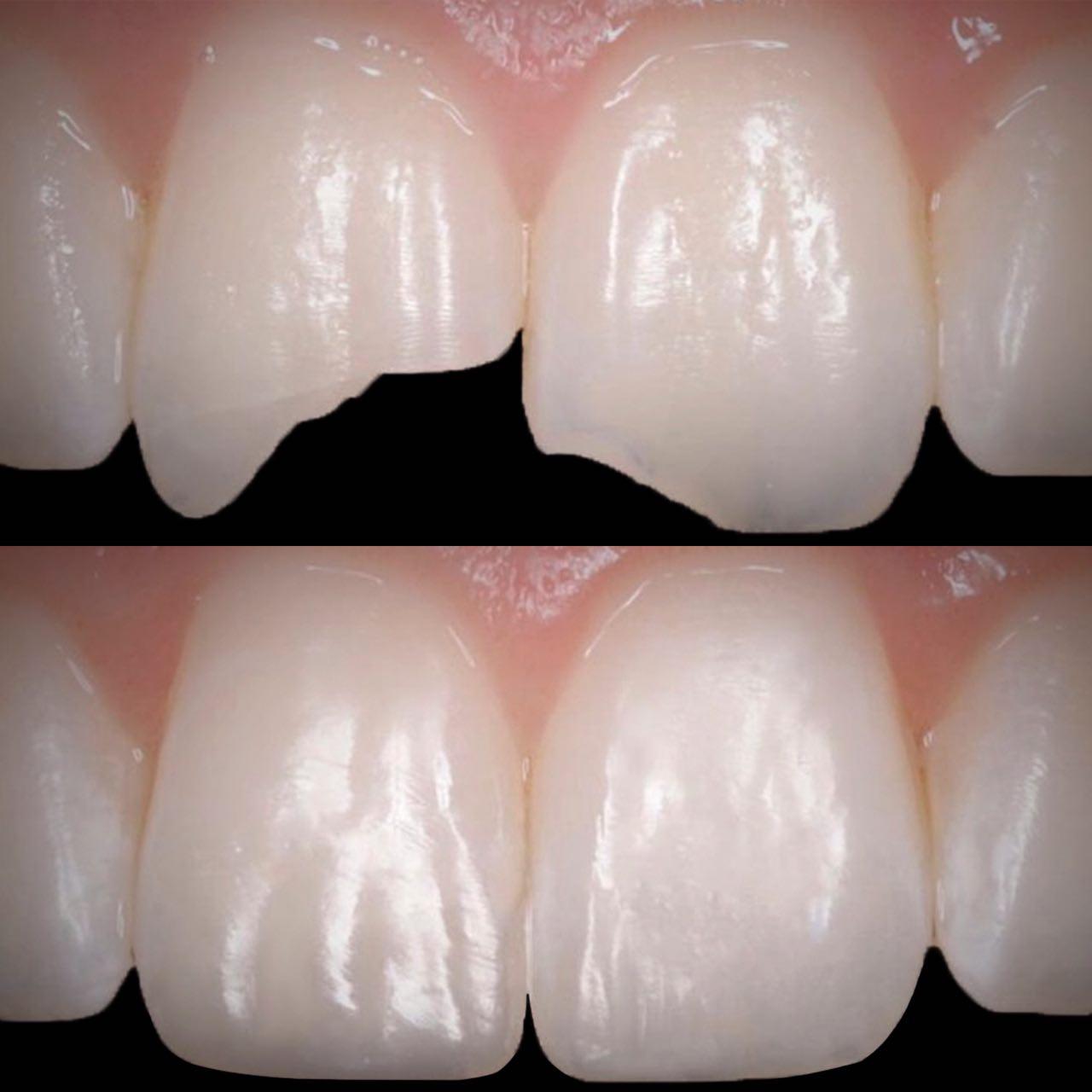3 - Художня реставрація зубів