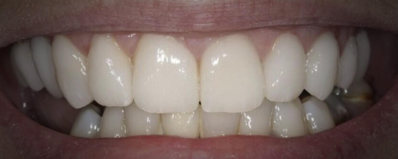 1 1 - Приклади робіт з протезування