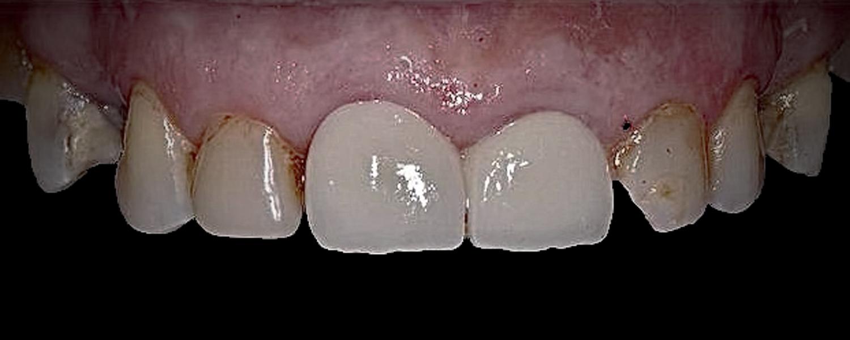 1 - Приклади робіт з протезування