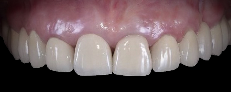 2 - Приклади робіт з протезування