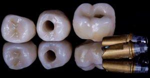 IMG 1684 1 300x157 - Керамічні коронки на імплантах