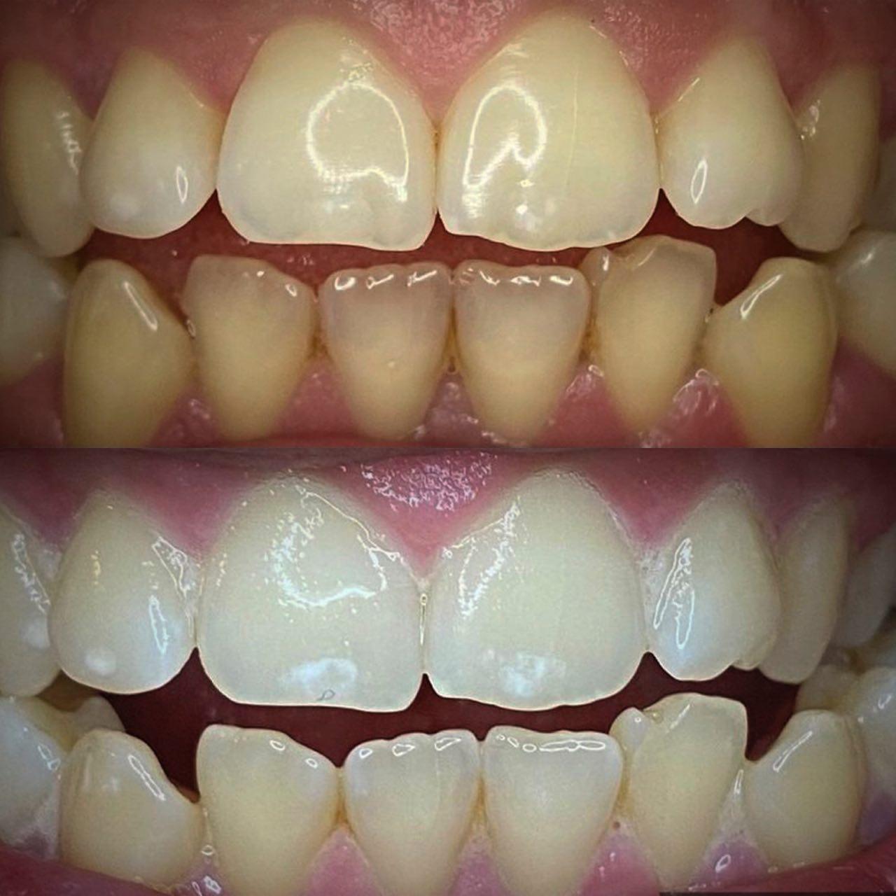 IMG 7ABFBE254A46 1 - Відбілювання зубів