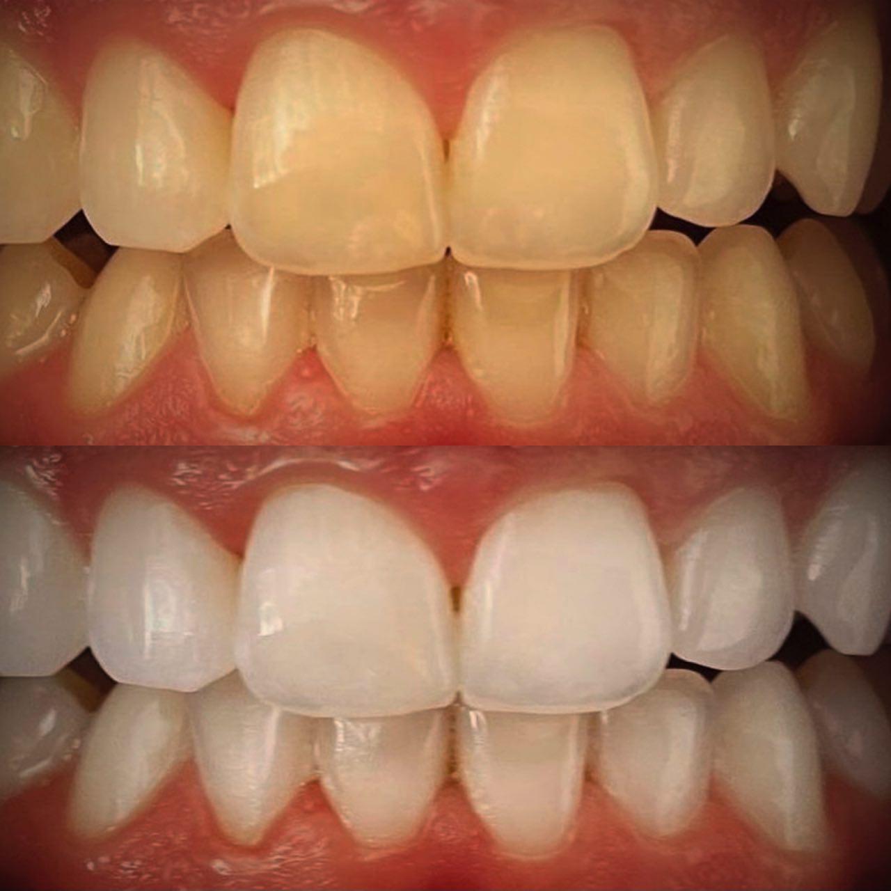 IMG 7ABFBE254A46 2 - Відбілювання зубів