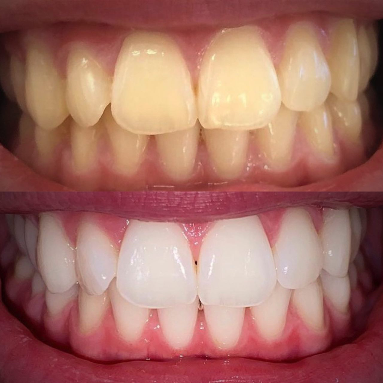 IMG 7ABFBE254A46 3 - Відбілювання зубів