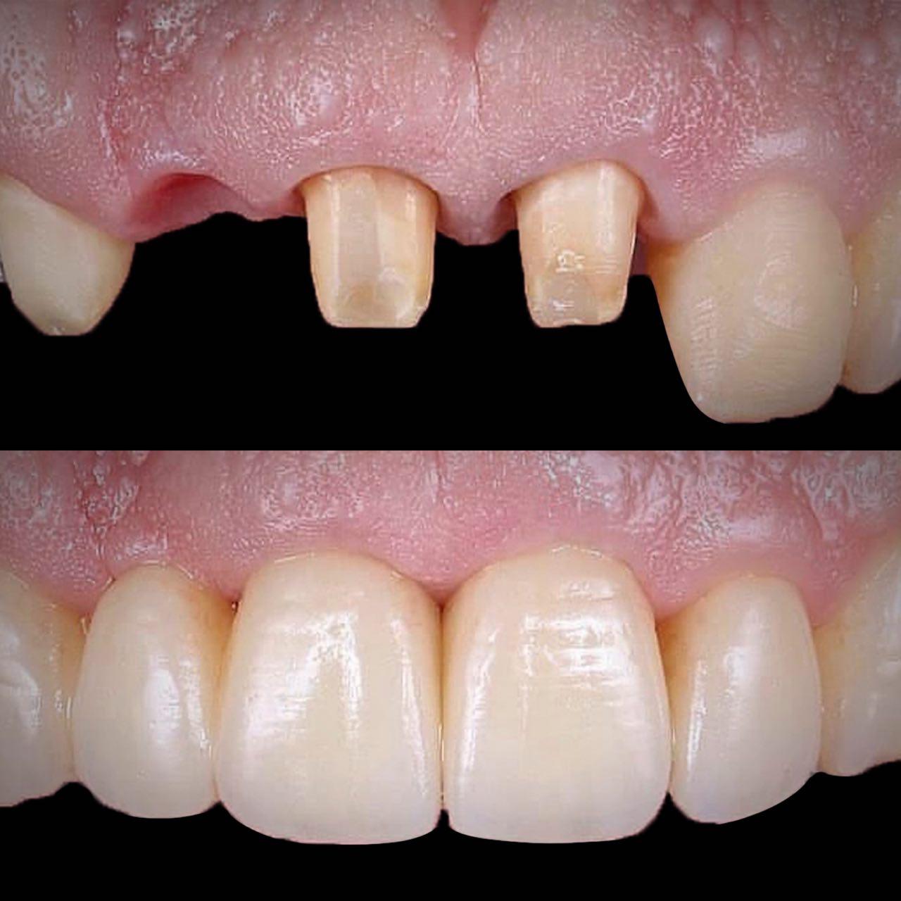 IMG 8A5DD7D7AB66 1 - Керамічні зубні коронки