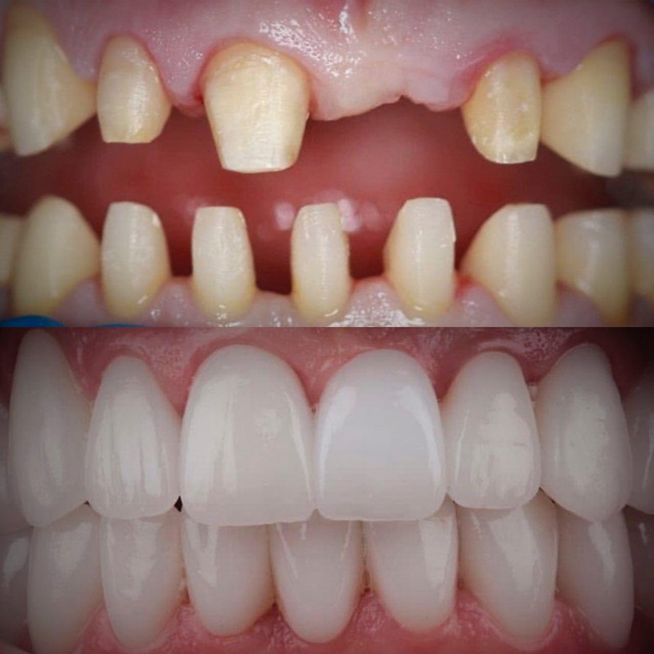 IMG 8A5DD7D7AB66 2 - Керамічні зубні коронки