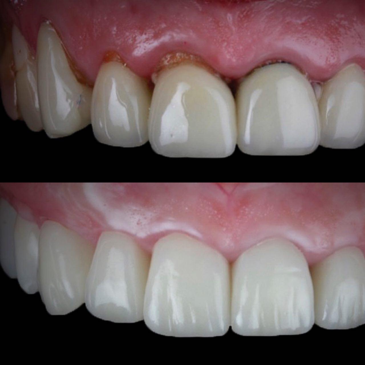IMG 8A5DD7D7AB66 3 - Протезування зубів