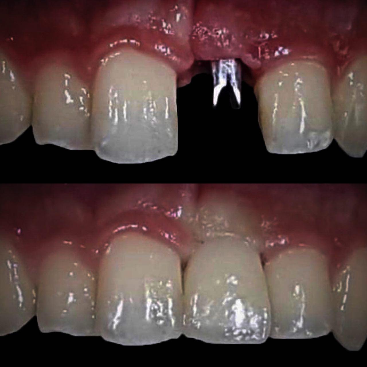 IMG A63EBE23BD66 2 - Імплантація зубів