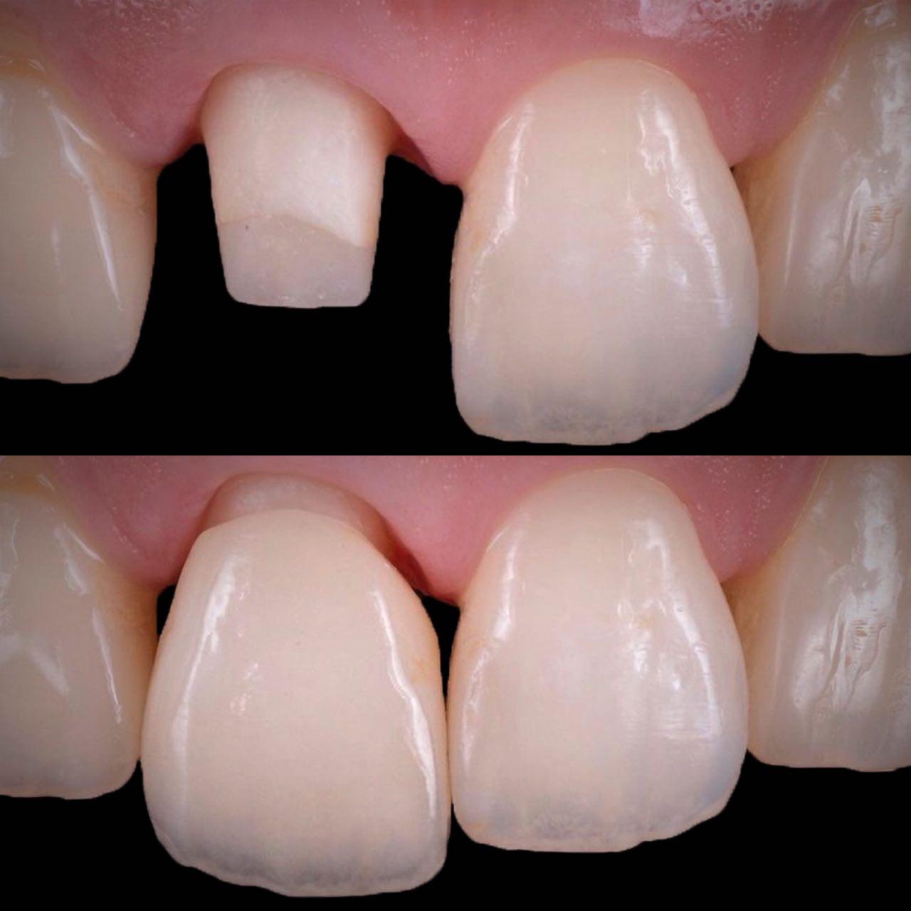 IMG D4ED04F6DCD8 2 - Керамічні зубні коронки