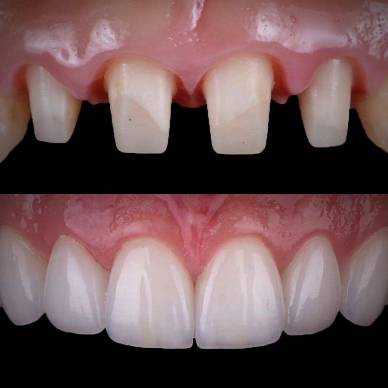 IMG D4ED04F6DCD8 3 - Керамічні зубні коронки