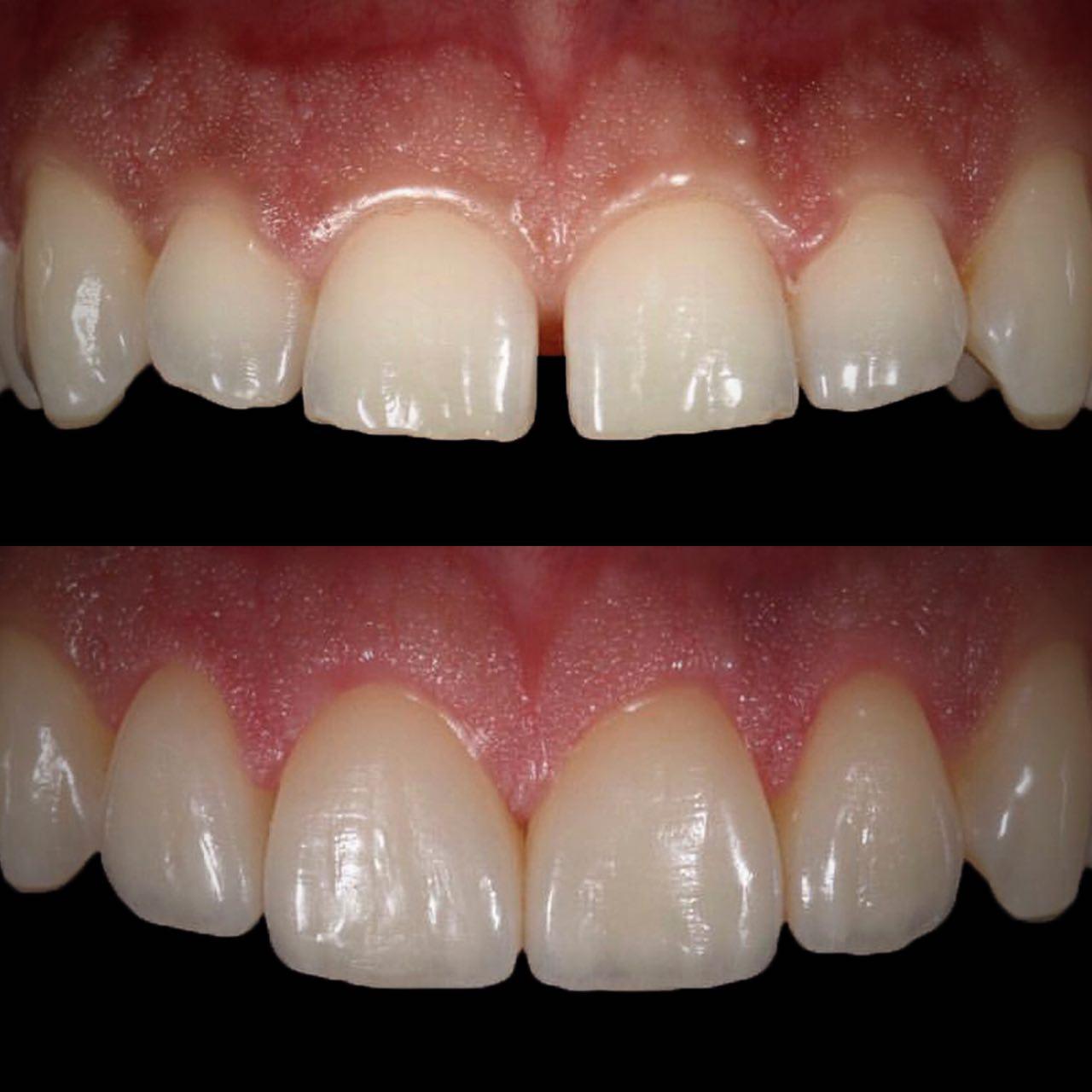IMG EA28C0AD23FD 1 - Художня реставрація зубів