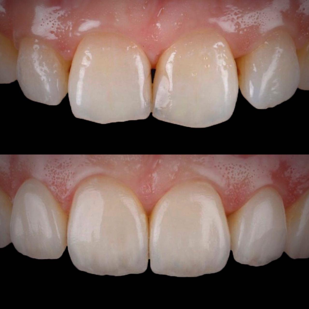 IMG EA28C0AD23FD 2 - Художня реставрація зубів