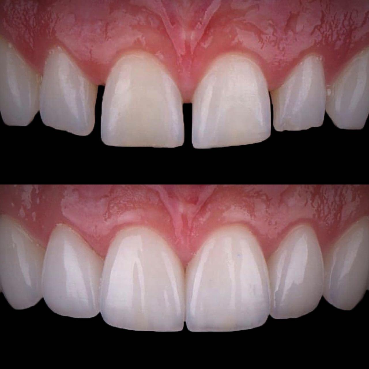 IMG EA28C0AD23FD 3 - Художня реставрація зубів