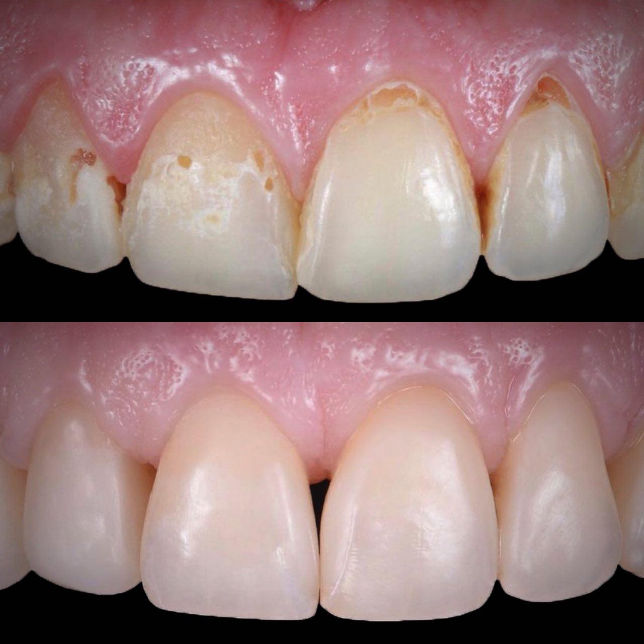 IMG EA28C0AD23FD 4 - Художня реставрація зубів