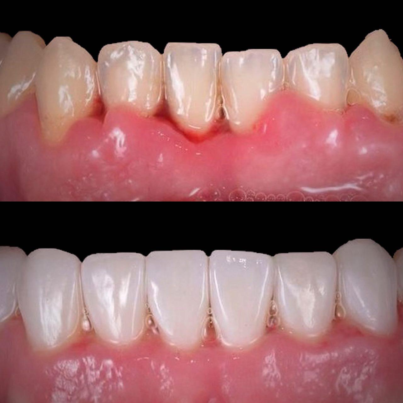 IMG FB2FAF4CA8C8 4 rotated - Художня реставрація зубів